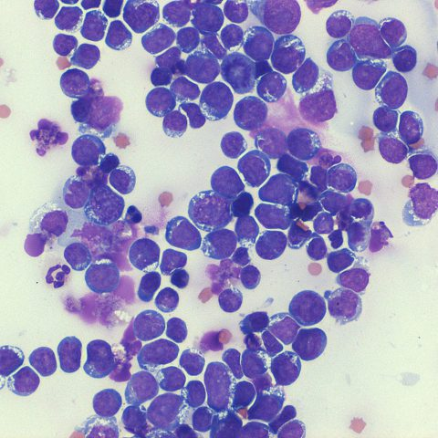 Cytology - Lymphoma
