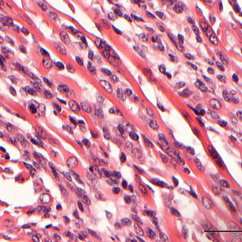 Histopathology - Rhabdomyosarcoma