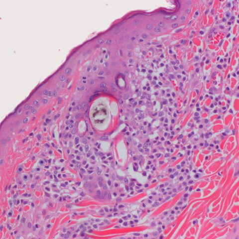 Histopathology - Epitheliotropic lymphoma