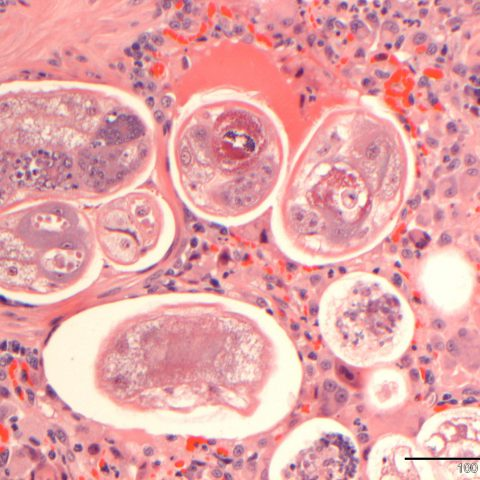 Histopathology - Feline lungworm