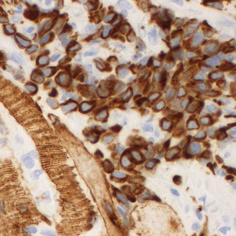 Histopathology - Desmin immunohistochemistry - Rhabdomyosarcoma