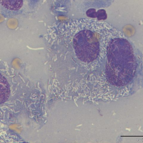 Cytology - Macrophages with intracytoplasmic mycobacteria