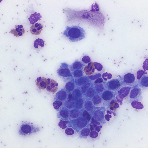 Ophthalmic - Cytology - Eosinophilic keratitis