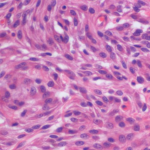 Histopathology - Perivascular wall tumour