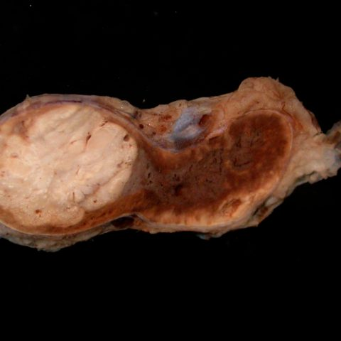 Adrenal gland - Adrenocortical adenoma