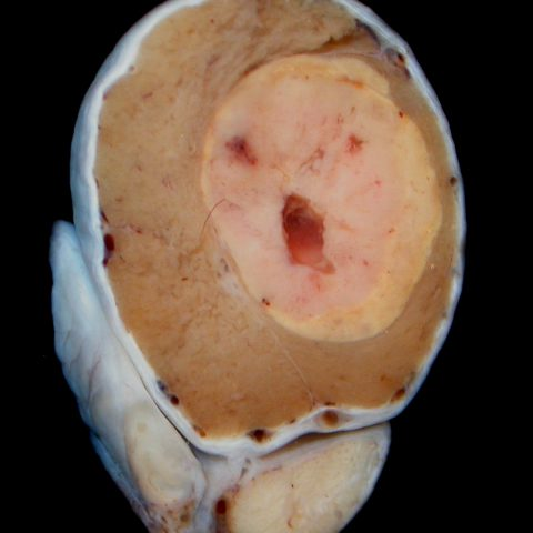 Testis -  Leydig (interstitial) cell tumour