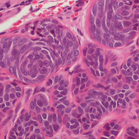 Histopathology - Trichoblastoma