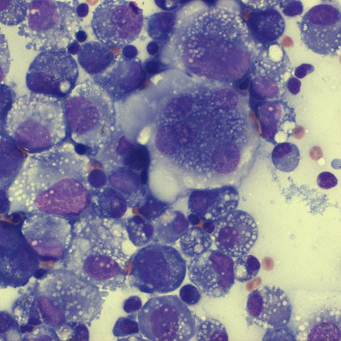 Cytology - Histiocytic sarcoma